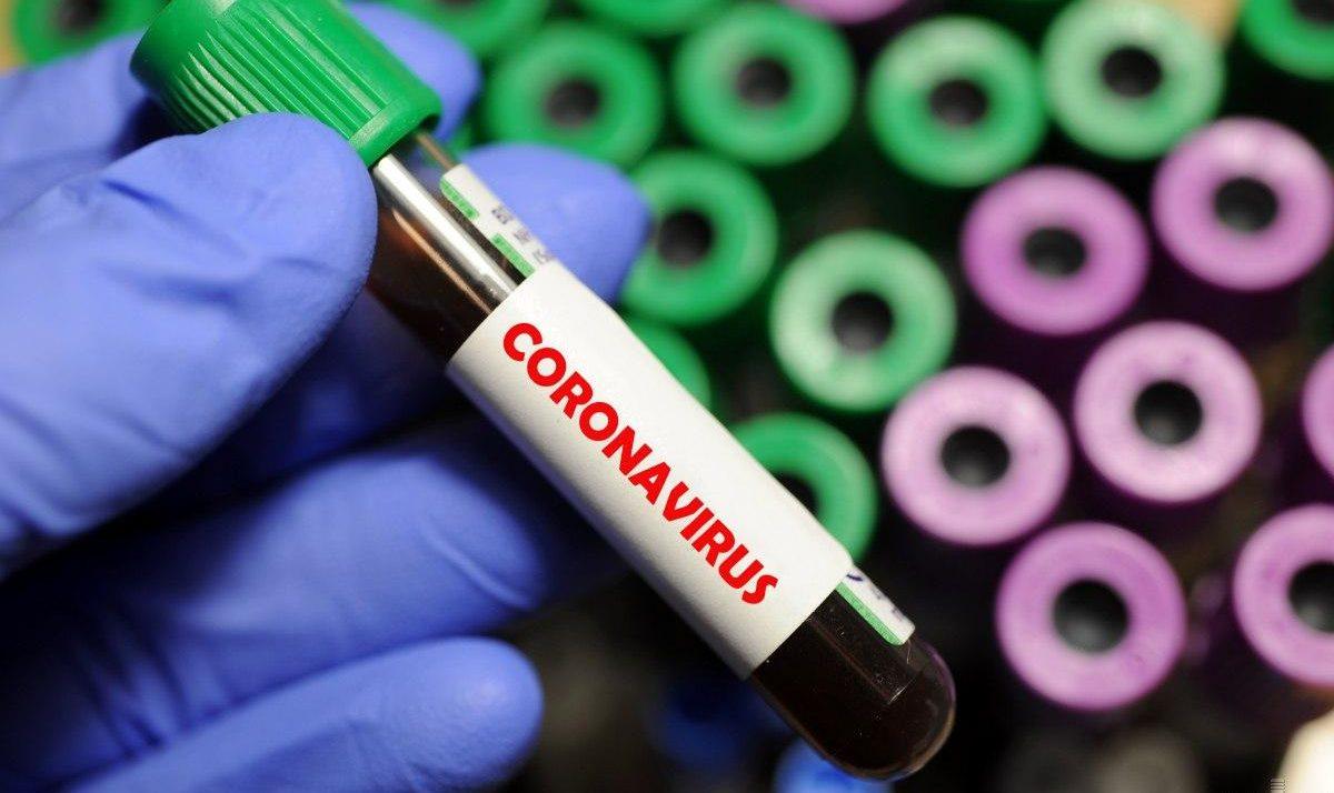 В Україні зафіксовано 20 148 випадків хвороби COVID-19, у ЗСУ хворіє 48 осіб