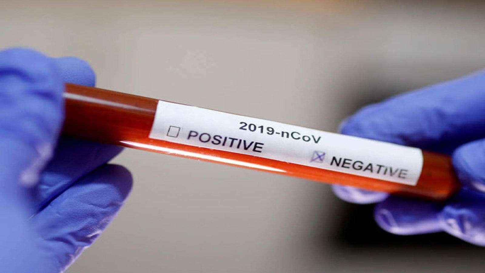 За результатами лабораторних досліджень у військового пенсіонера коронавірус не виявлено