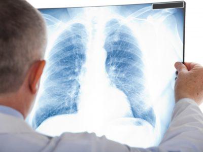 Командування Медсил ЗС України спростовує «дезу» щодо поширення туберкульозу та інших вірусних захворювань у війську