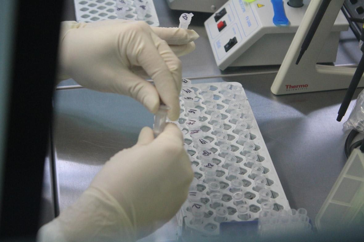 Уже більше ніж 1300 ПЛР-досліджень зроблено в спеціалізованій лабораторії ВМКЦ Західного регіону